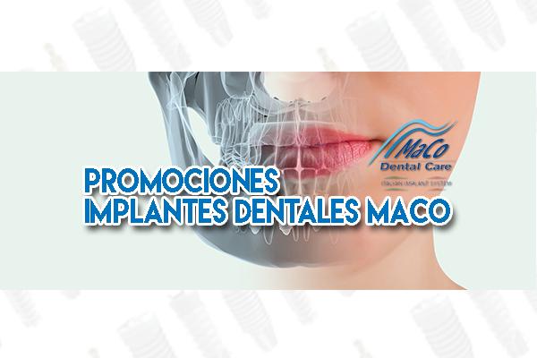 promociones implantes dentales