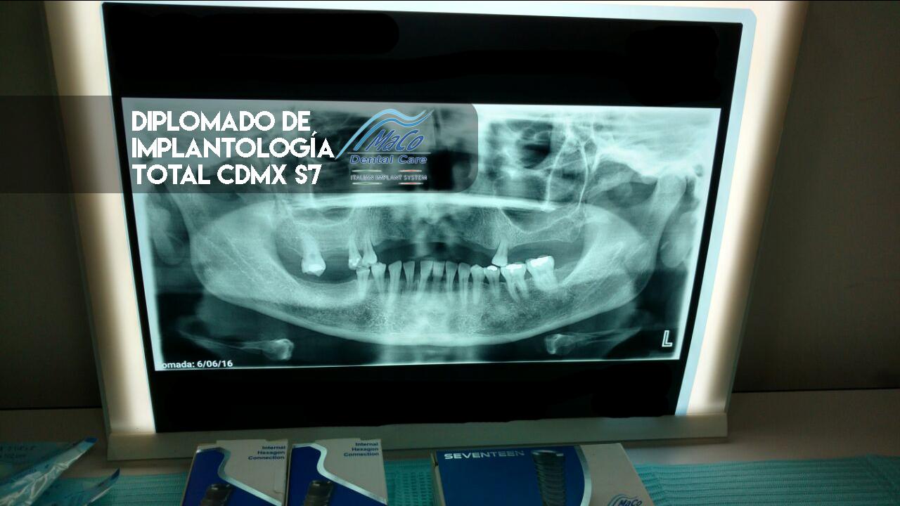 diplomado de implantologia cirugia