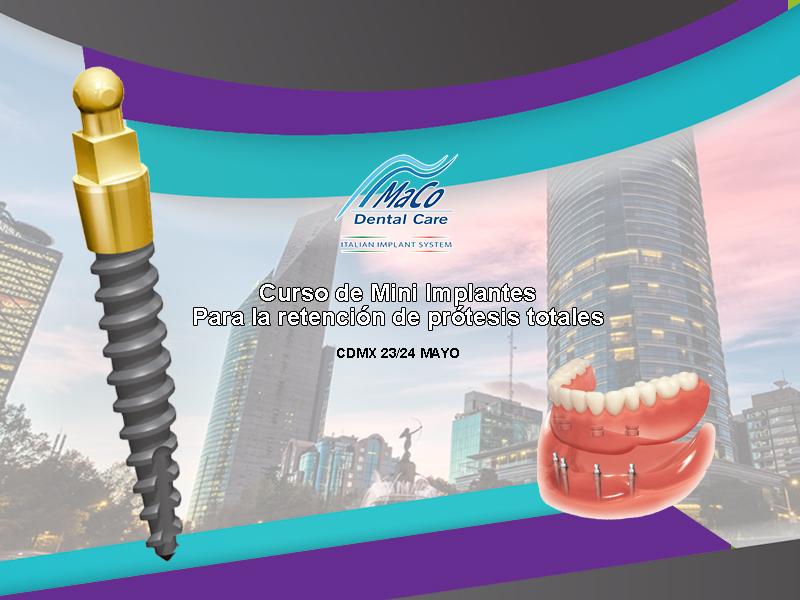 Curso mini implantes dentales mayo 2019.